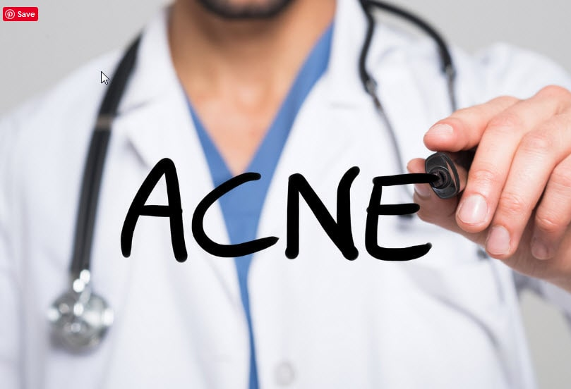Online Prescription for Acne