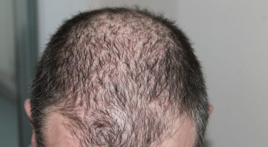 Hair Loss Finasteride- human's head has hair loss.