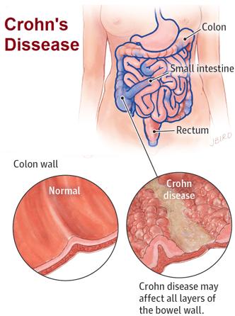 Image to describe Crohn's Dissease